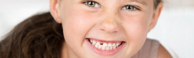 Ortopedia maxilar para niños en Polanco