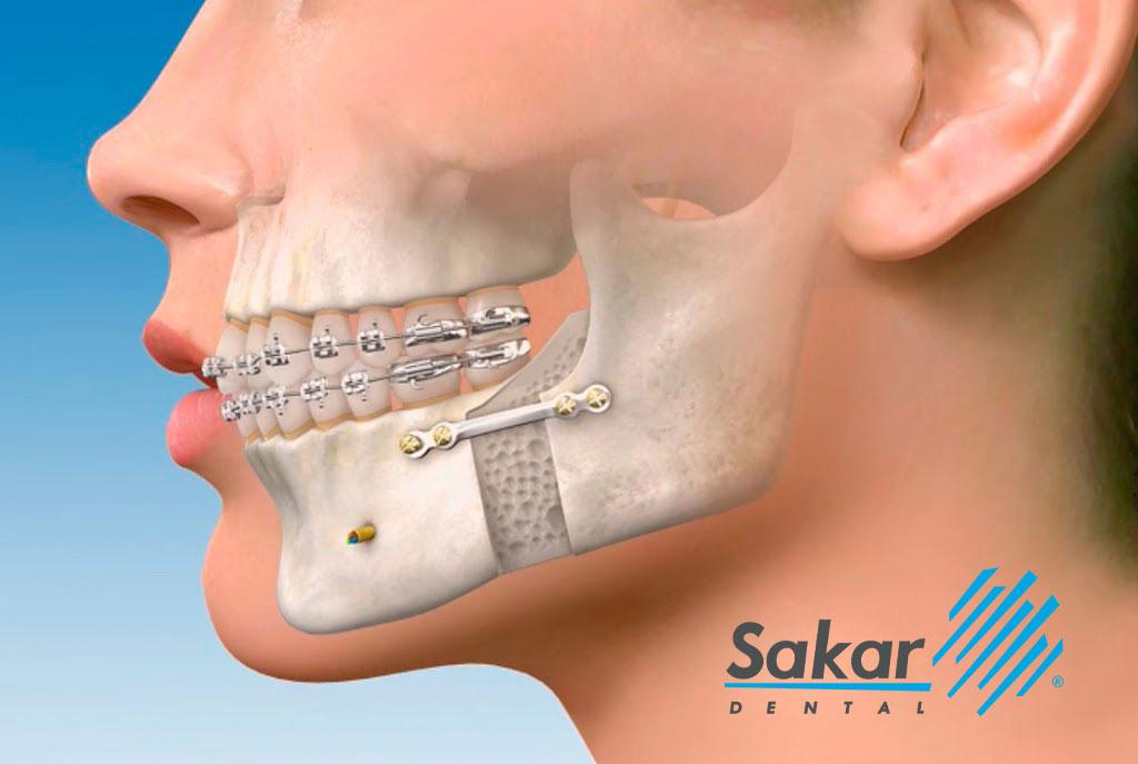 Cirugía maxilofacial en Polanco e Irrigación