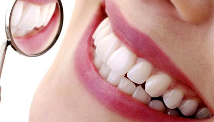 Resina dentales en Sakar Dental Polanco